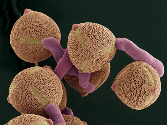 Treibende Kraft - keimender Pollen von Tuberaria, REM Koloration, Druck auf Alu, 80x60 cm, 2015, H. Halbritter