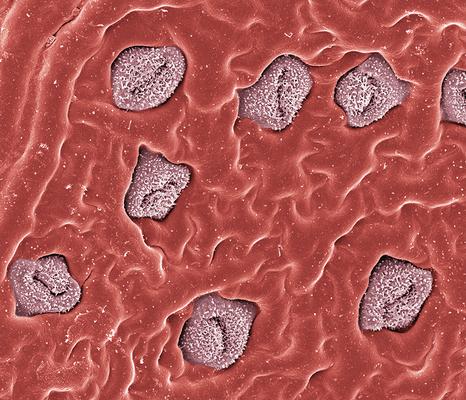 Kisses - Lorbeer, Blattunterseite mit Spaltöffnungen, Foto: Halbritter Heidemarie, koloriert: Ulrich Silvia, 2018, 80x60 cm, Druck auf Alu