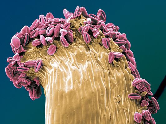 on top - Chimonanthus, Staubblatt mit Pollenkörnern - Druck auf Leinwand, 60x45 cm, 2012, REM-Aufnahme und Coloration: S. Ulrich - VERKAUFT