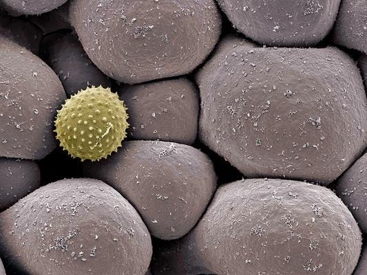 Sauromatum venosum - Druck auf Leinwand, 100x75 cm, 2012, REM-Aufnahme und Coloration: H. Halbritter - VERKAUFT