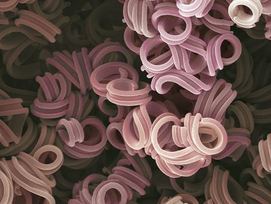 loops - Wachs - Druck auf Leinwand, 80x60 cm, 2012, REM-Aufnahme und Coloration: H. Halbritter - VERKAUFT