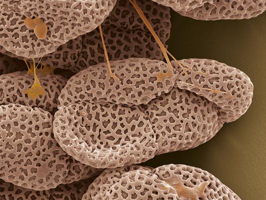 Pollen von Wendelähre (Spiranthes, Orchidaceae) - Latexdruck auf Leinwand, 100x80 cm, 2011, REM-Aufnahme und Coloration: H. Halbritter - VERKAUFT