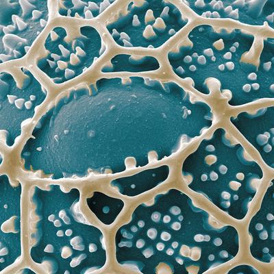 Pollenoberfläche von Ruellia - REM Koloration, Druck auf Leinwand, 80x80 cm, 2011, H. Halbritter/S. Ulrich