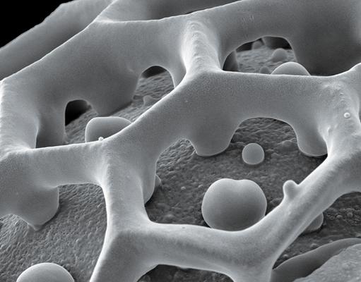 Pollenoberfläche von Eranthemum (Acanthaceae) - Latexcruck auf Leinwand, 100x80 cm, 2011, REM-Aufnahme: H. Halbritter - VERKAUFT