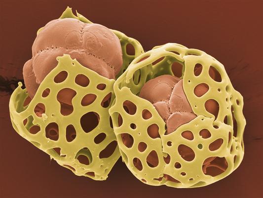 Gut behütet – Aechmea sp, Pollen-Tetraden, Foto: Halbritter, Heidemarie, koloriert: Ulrich, Silvia, 2018, 80x60 cm, Druck auf Alu