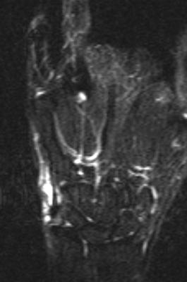 手関節尺側に高輝度信号を認める。  ※ 脂肪抑制T2強調画像