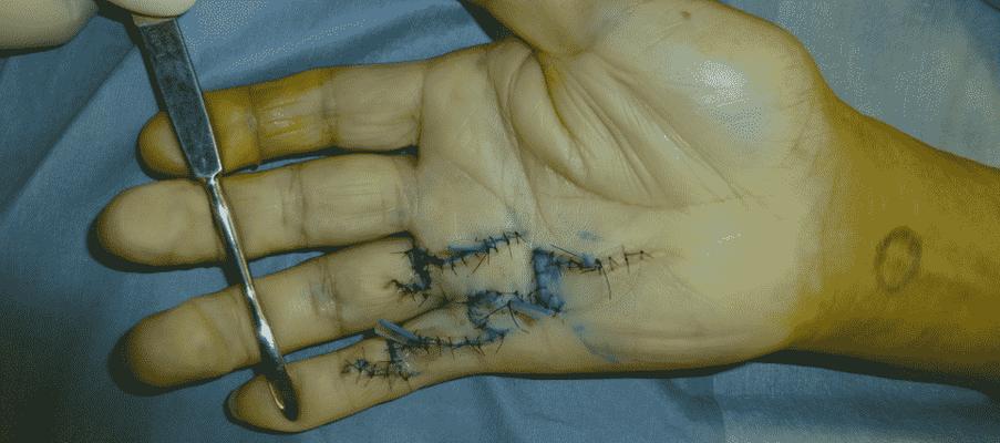 デュピュイトラン拘縮の手術後(手掌腱膜部分切除術)