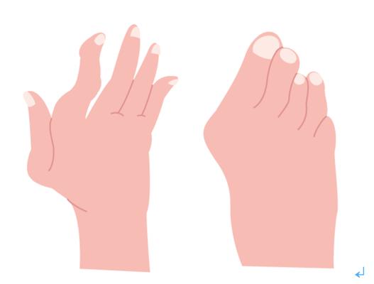 関節の変形(手・足):特に手指、手関節、足趾