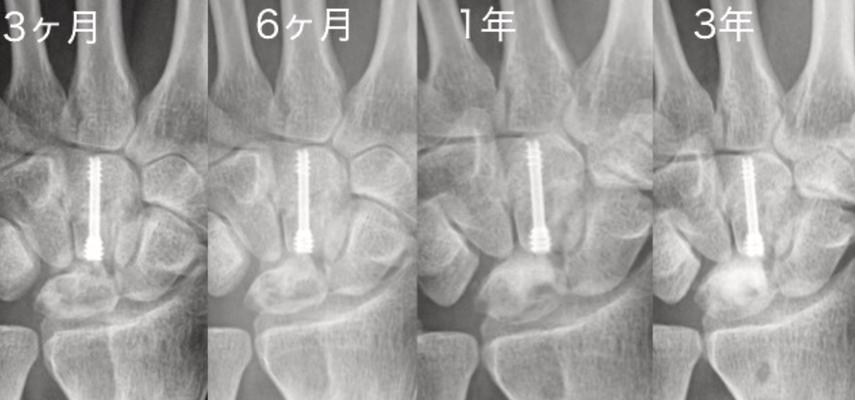 キーンベック病:手術後の経時的変化:月状骨の圧潰は進行しておらず、分節化が改善している。