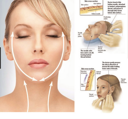Thread Lifts Design Cosmetic - Design Cosmetic