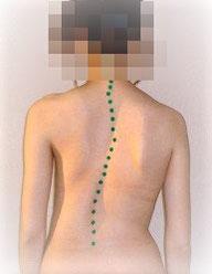側湾症・骨盤背骨の歪み
