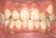たかす歯科クリニック乳歯