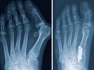 Disponemos de equipos de radiolgía para el diagnostico  de las afeciones del pie