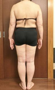 DNAパーソナル痩身 体験前