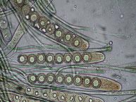 Lamprospora miniata-Asci-Sporen Präparat in Lugol