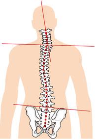 車の運転で頚椎ヘルニアが悪化した奈良県大和高田市の男性