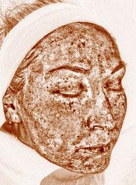 Hautanalyse mit Imaging System. Hier sehen Sie ein Bild wie sich die Pigmentverteilungen im Gesicht befinden. Behandelbare Pigmenflecken können aufgespürt werden. Visia Hautanalyse.
