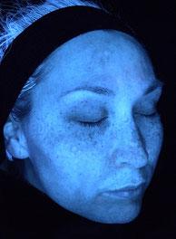 Hautanalyse mit Imaging System. Hier sehen Sie ein Bild auf dem sich sehr gut Aknebakterien bzw. Bakterienausscheidungsprodukte, die sogenannten Porphyrine, veranschaulichen lassen. Visia Hautanalyse.