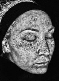Hautanalyse mit Imaging System. Hier sehen Sie ein Bild auf dem man koaguliertes Melanin erkennt. Die dauerhaften Spätfolgen häufiger Sonnenbrände oder langer Sonnenbäder. Visia Hautanalyse.
