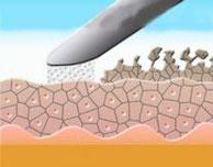 Zellabtragung durch Mikrodermabrasion