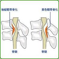 前縦靭帯骨化症や黄色靭帯骨化症の骨化