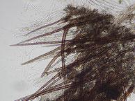 Trichophaeopsis paludosa-Randhaare -Paraphysen