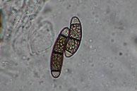Chaetosphaerella fusca-Sporen