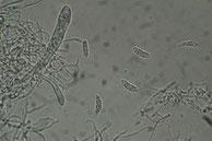 Polydesmia pruinosa-Asci-Sporen