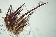 Scutellinia scutellata, Randhaare in Leitungswasserwasser