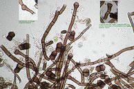 Chaetosphaerella fusca-Hyphen-Konidien