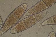 Bactridium flavum-Konidien