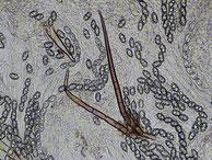 Asci-Sporen-Randhaare-in Leitungswasser