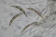 Melogramma campylosporum-reife Sporen