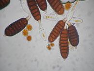 Teleutosporen von Phragmidium mucronatum