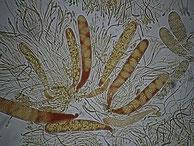 Claussenomyces xylophilus Asci mit Konidienballen cf.