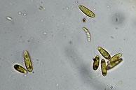 Roseodiscus formosus-Sporen