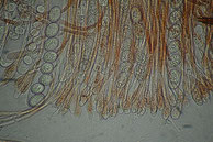 Scutellinia scutellata, Asci mit Sporen, Paraphysen,in L.-wasser