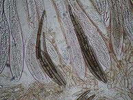 Geoglossum cookeianum-Asci-Sporen-Paraphysen