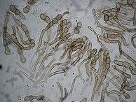 Geoglossum cookeianum-Paraphysen