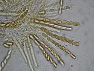 Pleonectria sinopica-Asci-Sporen