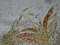 Gloniopsis praelonga-Asci-Sporen