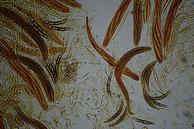 Melogramma campylosporum-Asci-Sporen-Paraphysen