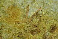 Scutellinia crucipila Sternhaariger Erdborstling Randhaare