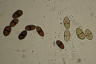 Valsaria insitiva-reife und unausgereifte Sporen