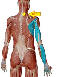 上肢伸筋からの頚部痛