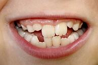 Häufig treten bei Schulkindern die Zähnen - ähnlich wie bei einem Haifischgebiss - hintereinander auf.