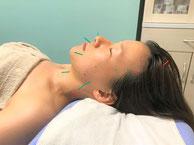 美容鍼灸を受けている女性の写真