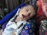 栄養不足の赤ちゃん