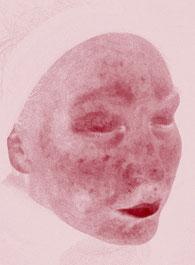 Hautanalyse mit Imaging System. Hier sehen Sie ein Bild auf dem sich Entzündungen in der Haut und Blutgefäße/Blutkapillaren zeigen lassen. Visia Hautanalyse.