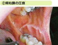 八戸 歯ぎしり 噛み締め 非歯原性疼痛 マウスピース 顎関節症